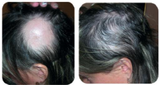 Les vitamines vitroum les rappels les cheveux